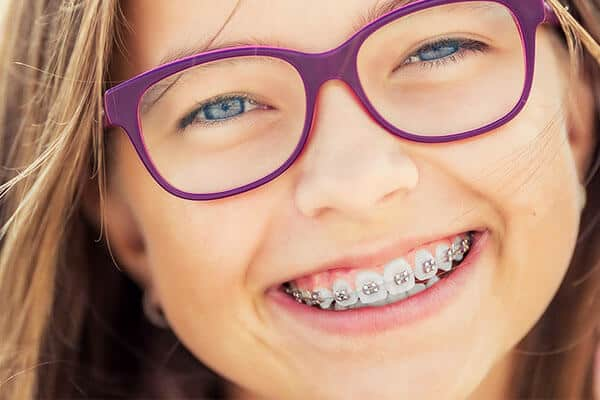 aparelho fixo, aparelho dentário, tratamento ortodontia