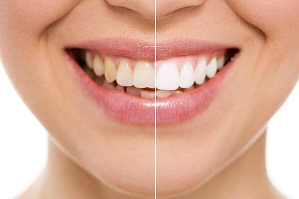 branqueamento dentário, estética, dentes brancos