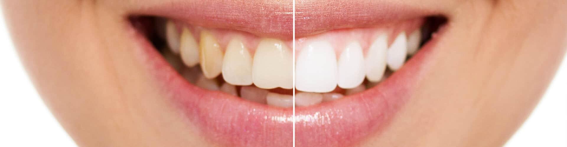 branqueamento dentario, branqueamento dentes, dentes brancos
