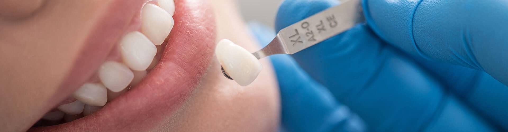 coroas dentárias, facetas dentárias, porcelana dentária, estética dentária