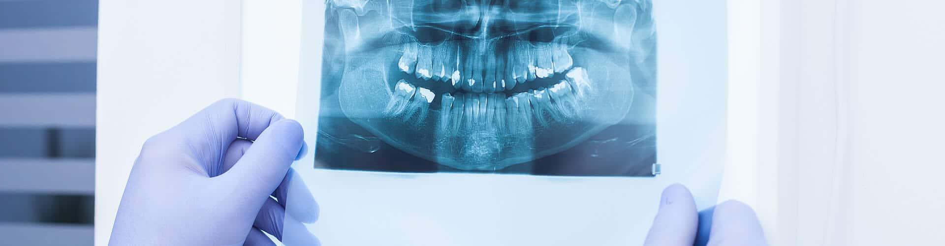 dor de dente, sensibilidade dentária, desvitaliação dentária, endodontia