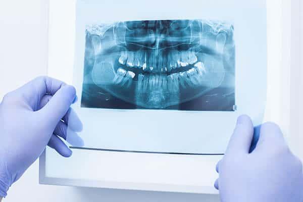 tratamento dor dentária, desvitalização dentária, tratamento endodontia