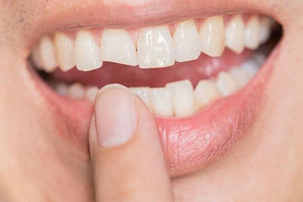 restauração dentária, estética dentária