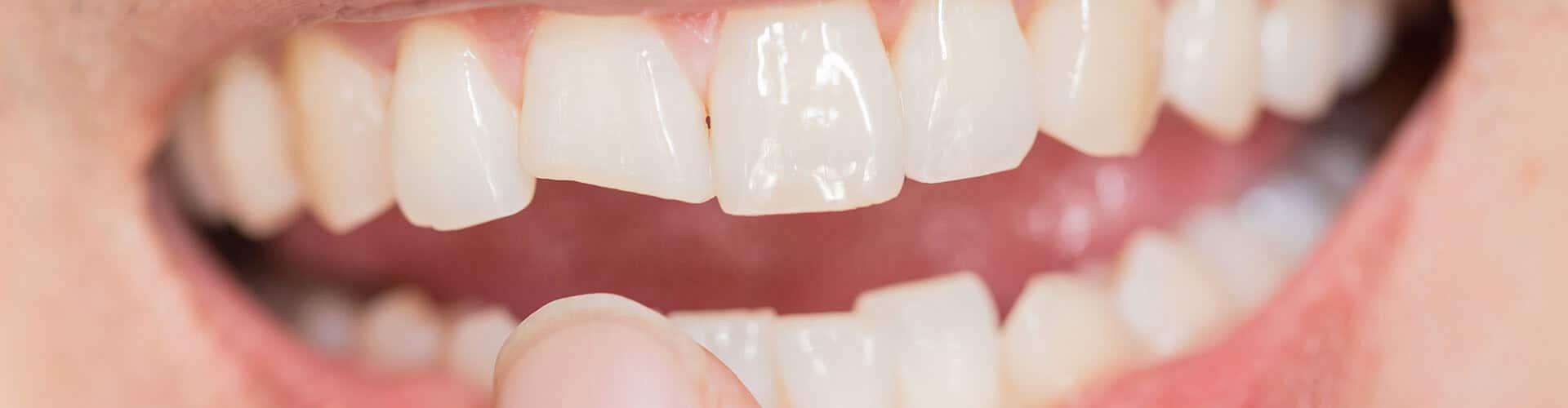 restaurações dentárias, restauração dentária, correção dentária
