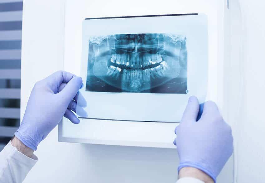 Dor e Desvitalização Dentária explicadas