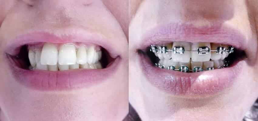 1° mês de Aparelho Dentário