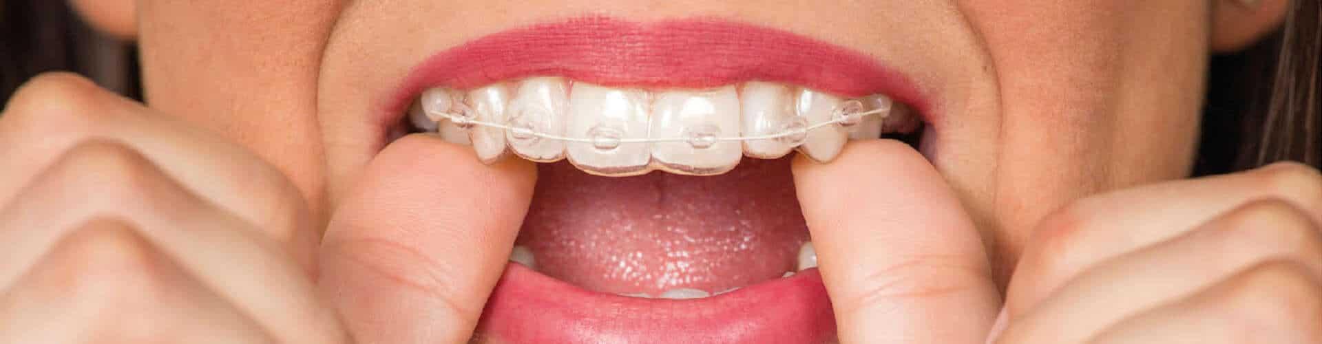 aparelho dentario, ortodontia, tratamento de ortodontia, aparelho fixo, aparelho removível