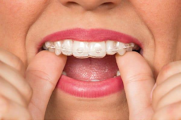 dentição na criança, dentista infantil, tratamento odontopediatria